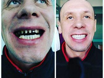 Уникальное foto Стоматологии Государственная стоматологическая больница г, Хэйхэ 40065037 в Иркутске