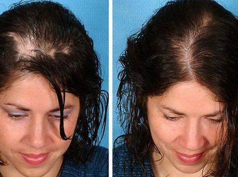 Ответы@:.для роста волос, пробуждения спящих