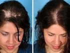 Увидеть foto Косметические услуги Процедура для активации спящих луковиц на голове, укрепление и быстрый рост волос 32384161 в Костроме