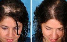 Процедура для активации спящих луковиц на голове, укрепление и быстрый рост волос