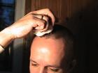 Смотреть foto  электромассажер лазерный для кожи головы из Китая 40021168 в Краснодаре