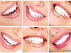 Изображение в   Предлагаю Вам свои услуги по лечению зубов в Москве 100