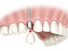 Увидеть фото  Имплантация зубов в москве 69076382 в Москве
